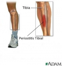 Periostitis tibial, what is this?